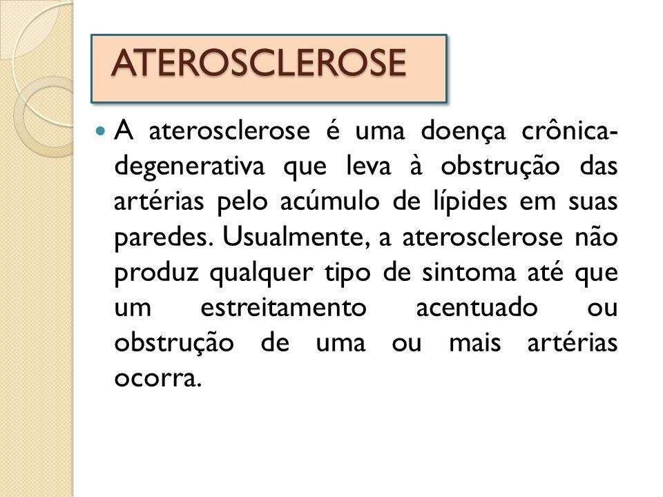 ATEROSCLEROSE A aterosclerose é uma doença crônica- degenerativa que leva à obstrução das artérias pelo acúmulo de lípides em suas paredes. Usualmente