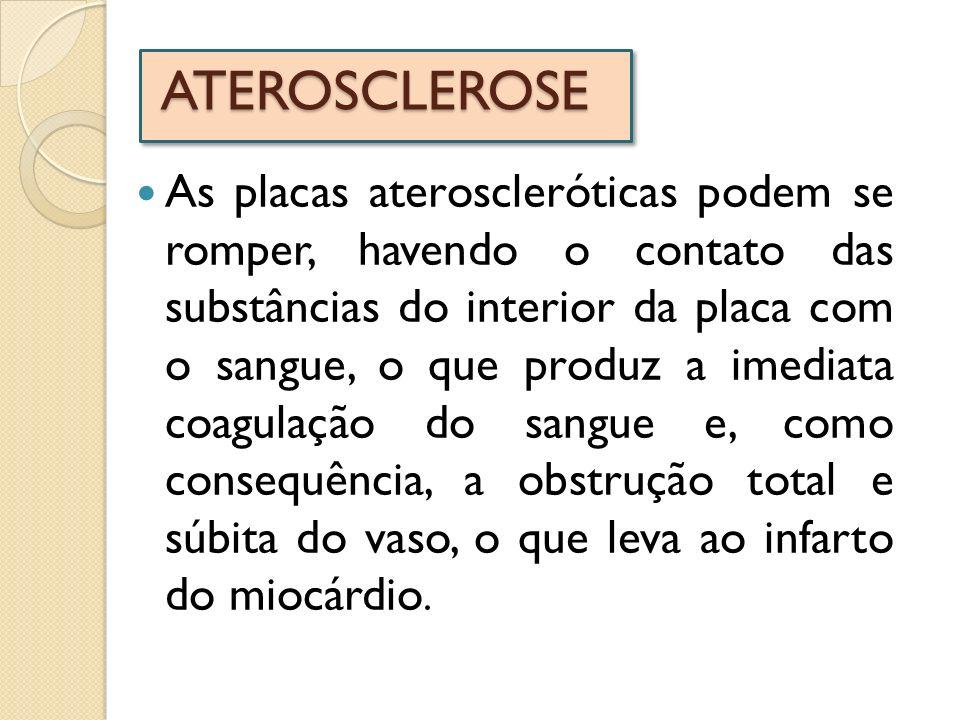 ATEROSCLEROSE As placas ateroscleróticas podem se romper, havendo o contato das substâncias do interior da placa com o sangue, o que produz a imediata