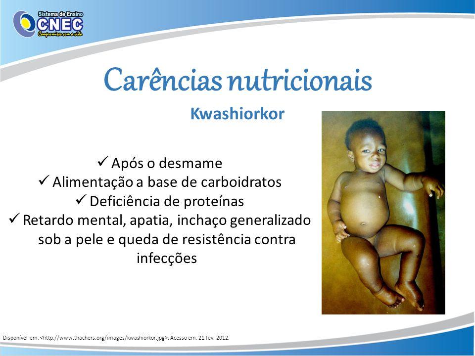 Carências nutricionais Kwashiorkor Disponível em:. Acesso em: 21 fev. 2012. Após o desmame Alimentação a base de carboidratos Deficiência de proteínas