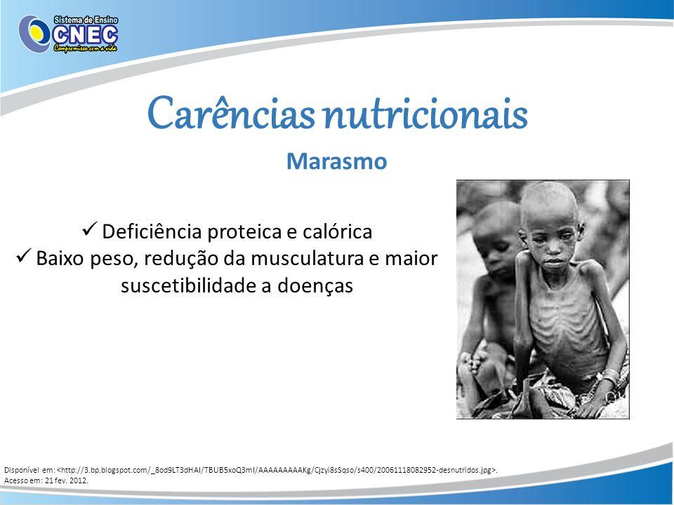 Carências nutricionais Marasmo Disponível em:. Acesso em: 21 fev. 2012. Deficiência proteica e calórica Baixo peso, redução da musculatura e maior sus