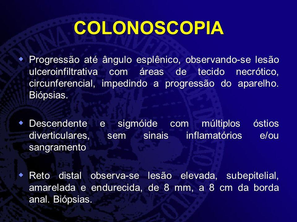 COLONOSCOPIA Progressão até ângulo esplênico, observando-se lesão ulceroinfiltrativa com áreas de tecido necrótico, circunferencial, impedindo a progr