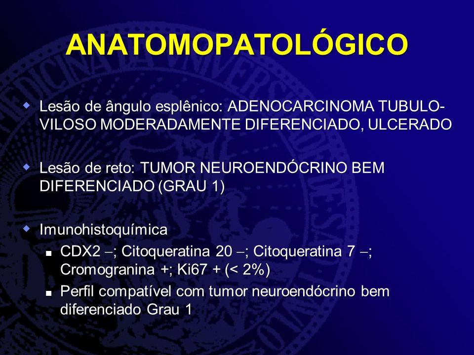 ANATOMOPATOLÓGICO Lesão de ângulo esplênico: ADENOCARCINOMA TUBULO- VILOSO MODERADAMENTE DIFERENCIADO, ULCERADO Lesão de ângulo esplênico: ADENOCARCIN