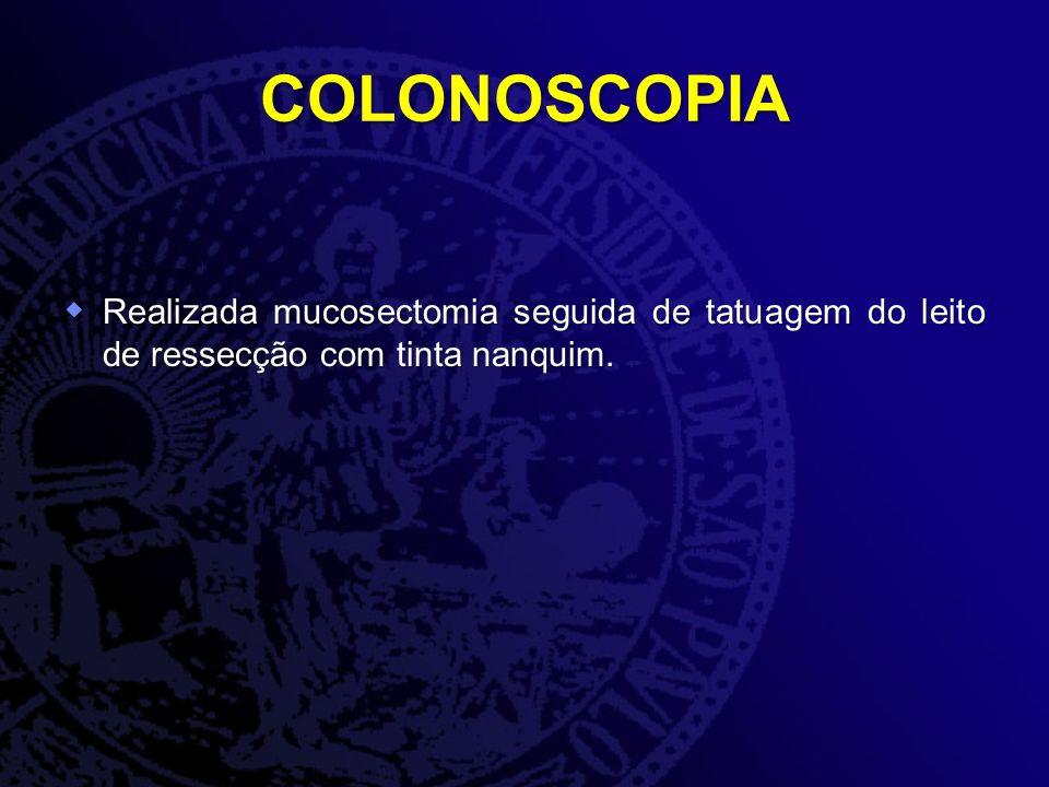 COLONOSCOPIA Realizada mucosectomia seguida de tatuagem do leito de ressecção com tinta nanquim. Realizada mucosectomia seguida de tatuagem do leito d