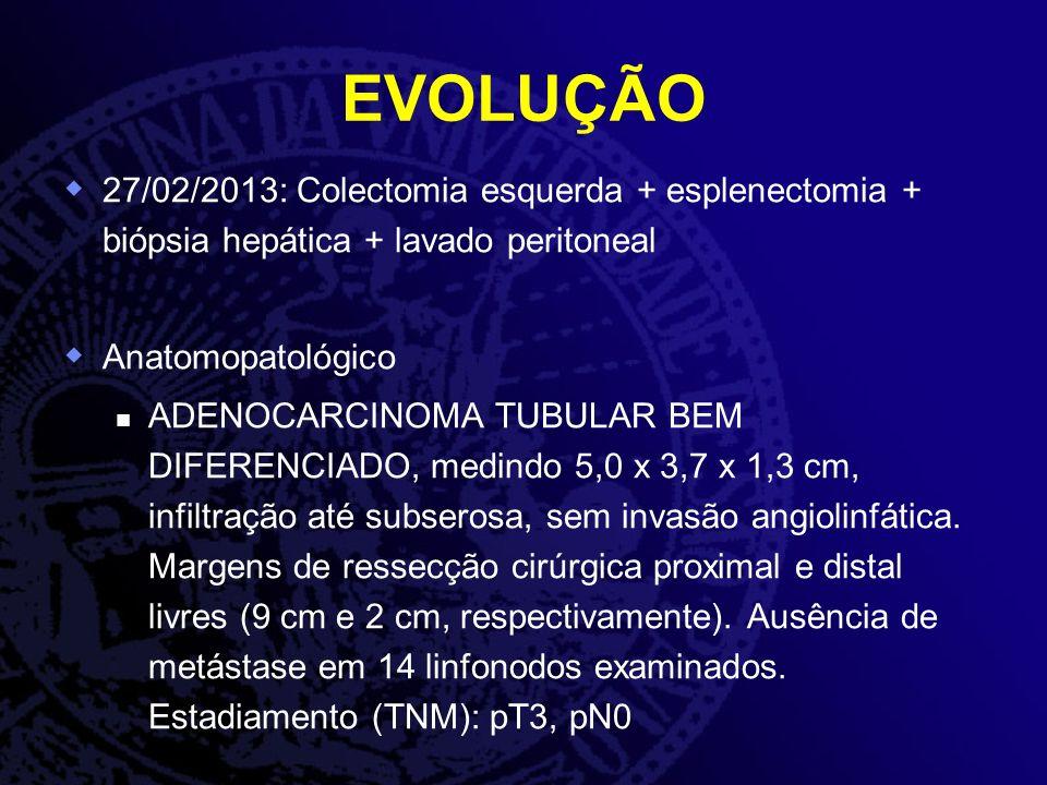 EVOLUÇÃO 27/02/2013: Colectomia esquerda + esplenectomia + biópsia hepática + lavado peritoneal Anatomopatológico ADENOCARCINOMA TUBULAR BEM DIFERENCI