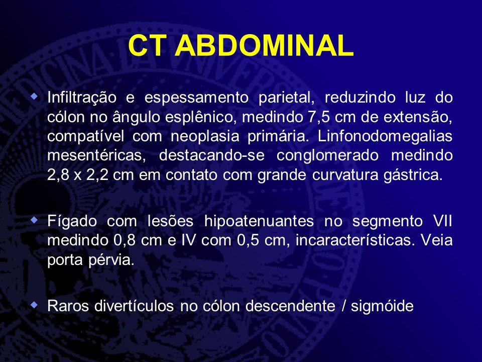 ANATOMOPATOLÓGICO Lesão de ângulo esplênico: ADENOCARCINOMA TUBULO- VILOSO MODERADAMENTE DIFERENCIADO, ULCERADO Lesão de ângulo esplênico: ADENOCARCINOMA TUBULO- VILOSO MODERADAMENTE DIFERENCIADO, ULCERADO Lesão de reto: TUMOR NEUROENDÓCRINO BEM DIFERENCIADO (GRAU 1) Lesão de reto: TUMOR NEUROENDÓCRINO BEM DIFERENCIADO (GRAU 1) Imunohistoquímica Imunohistoquímica CDX2 ; Citoqueratina 20 ; Citoqueratina 7 ; Cromogranina +; Ki67 + (< 2%) CDX2 ; Citoqueratina 20 ; Citoqueratina 7 ; Cromogranina +; Ki67 + (< 2%) Perfil compatível com tumor neuroendócrino bem diferenciado Grau 1 Perfil compatível com tumor neuroendócrino bem diferenciado Grau 1