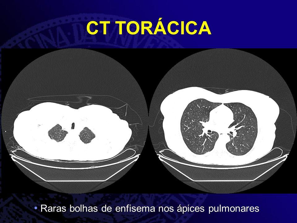 CT TORÁCICA Raras bolhas de enfisema nos ápices pulmonares Raras bolhas de enfisema nos ápices pulmonares