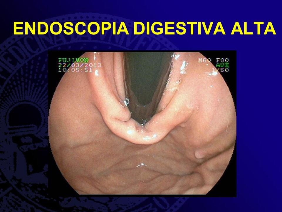 Estômago: Pólipo séssil em fundo gástrico, coberto por mucosa normal de 5 mm.