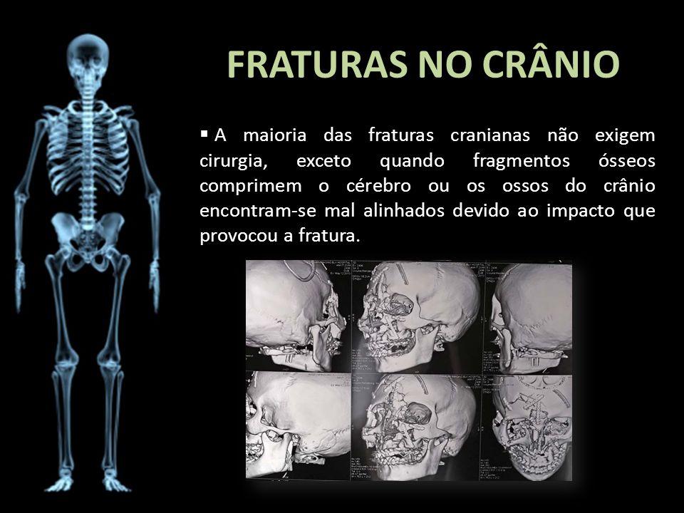 FRATURAS NO CRÂNIO A maioria das fraturas cranianas não exigem cirurgia, exceto quando fragmentos ósseos comprimem o cérebro ou os ossos do crânio enc