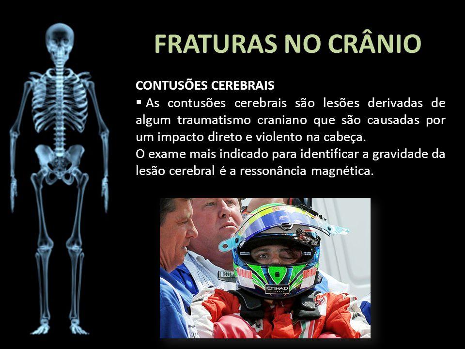 FRATURAS NO CRÂNIO CONTUSÕES CEREBRAIS As contusões cerebrais são lesões derivadas de algum traumatismo craniano que são causadas por um impacto diret