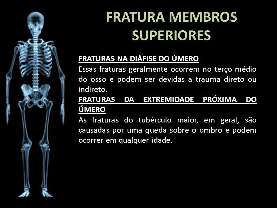 FRATURA MEMBROS SUPERIORES FRATURAS NA DIÁFISE DO ÚMERO Essas fraturas geralmente ocorrem no terço médio do osso e podem ser devidas a trauma direto o