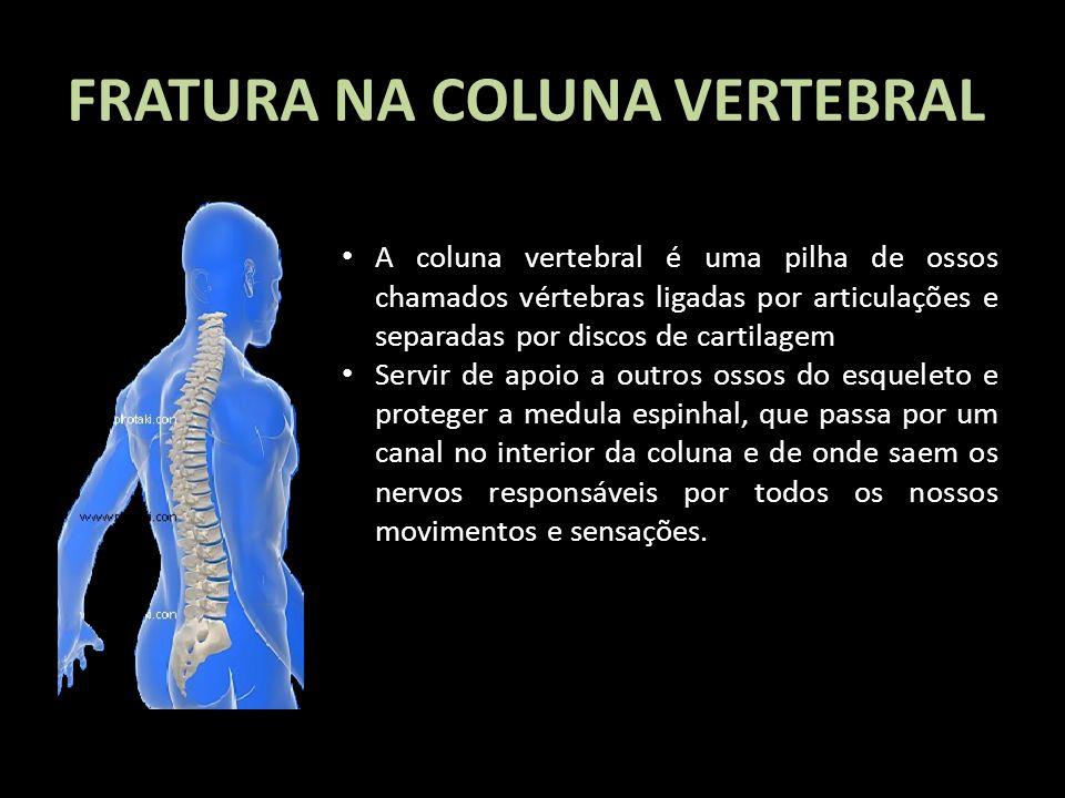 FRATURA NA COLUNA VERTEBRAL A coluna vertebral é uma pilha de ossos chamados vértebras ligadas por articulações e separadas por discos de cartilagem S