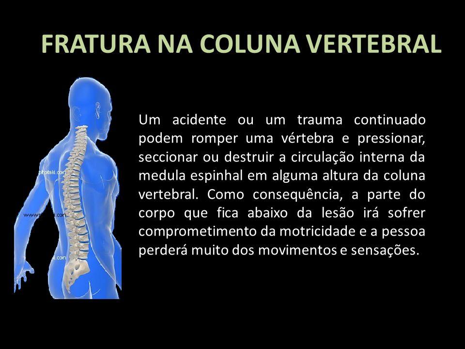 Um acidente ou um trauma continuado podem romper uma vértebra e pressionar, seccionar ou destruir a circulação interna da medula espinhal em alguma al