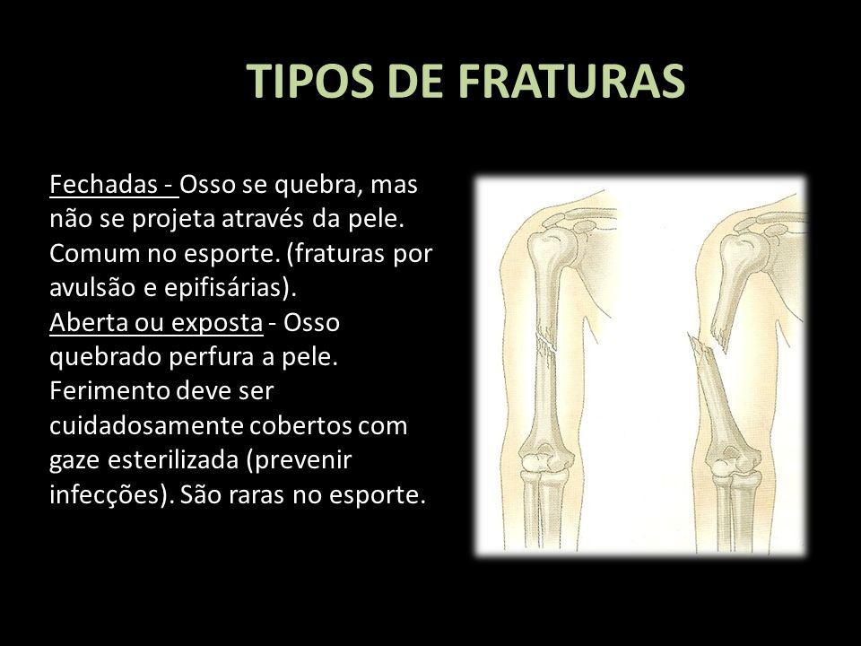 TIPOS DE FRATURAS Fechadas - Osso se quebra, mas não se projeta através da pele. Comum no esporte. (fraturas por avulsão e epifisárias). Aberta ou exp