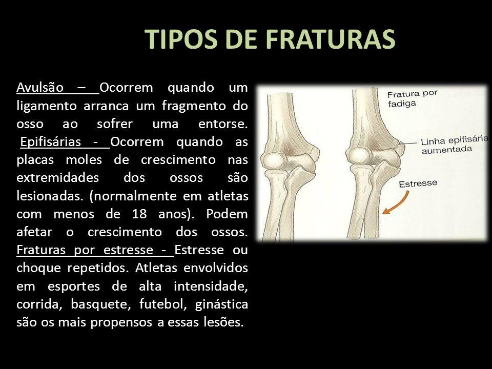 TIPOS DE FRATURAS Avulsão – Ocorrem quando um ligamento arranca um fragmento do osso ao sofrer uma entorse. Epifisárias - Ocorrem quando as placas mol