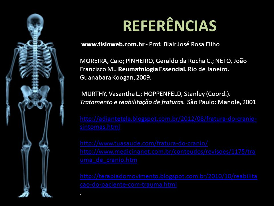 REFERÊNCIAS www.fisioweb.com.br - Prof. Blair José Rosa Filho MOREIRA, Caio; PINHEIRO, Geraldo da Rocha C.; NETO, João Francisco M.. Reumatologia Esse
