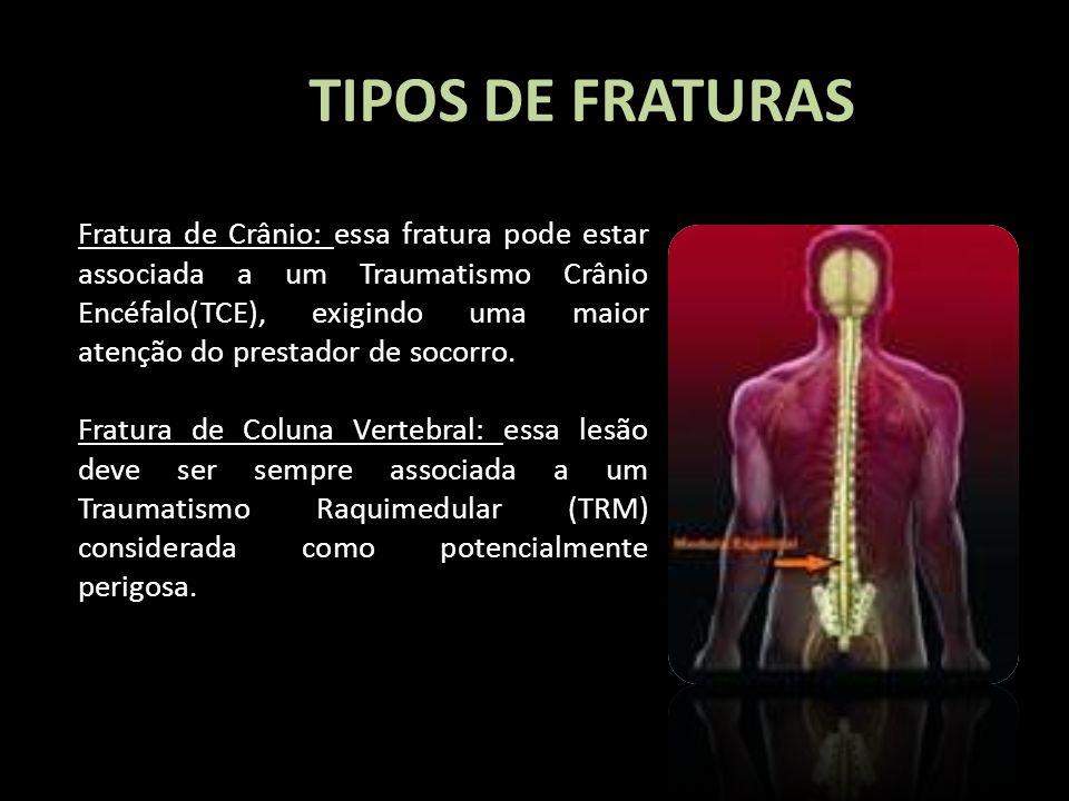 TIPOS DE FRATURAS Fratura de Crânio: essa fratura pode estar associada a um Traumatismo Crânio Encéfalo(TCE), exigindo uma maior atenção do prestador
