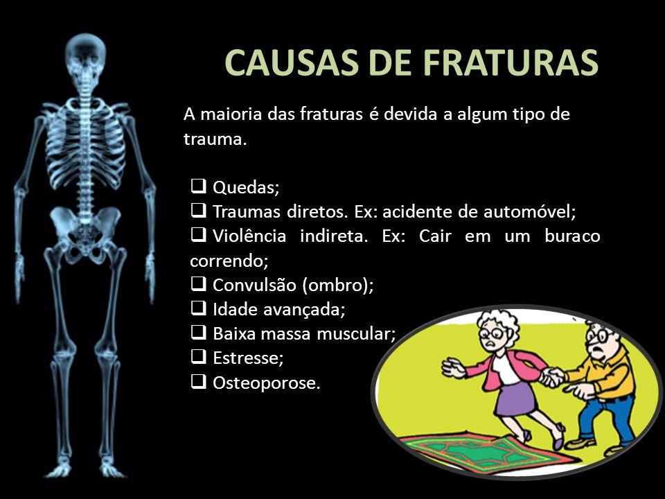 CAUSAS DE FRATURAS A maioria das fraturas é devida a algum tipo de trauma. Quedas; Traumas diretos. Ex: acidente de automóvel; Violência indireta. Ex: