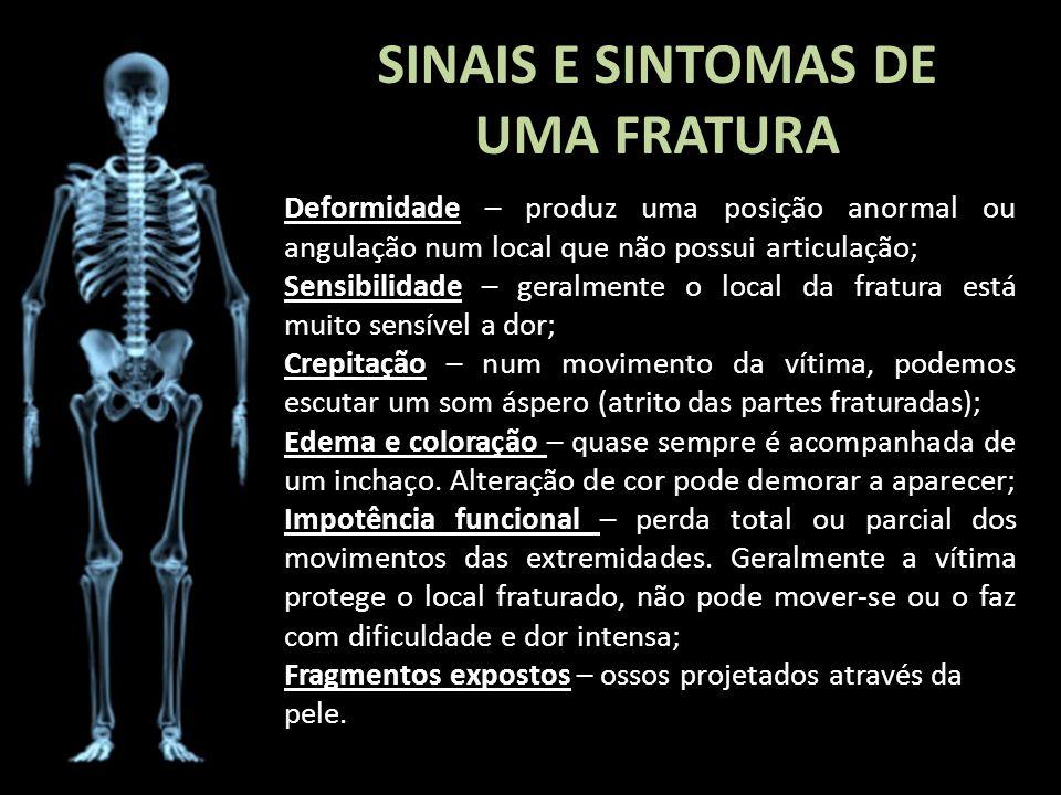 SINAIS E SINTOMAS DE UMA FRATURA Deformidade – produz uma posição anormal ou angulação num local que não possui articulação; Sensibilidade – geralment