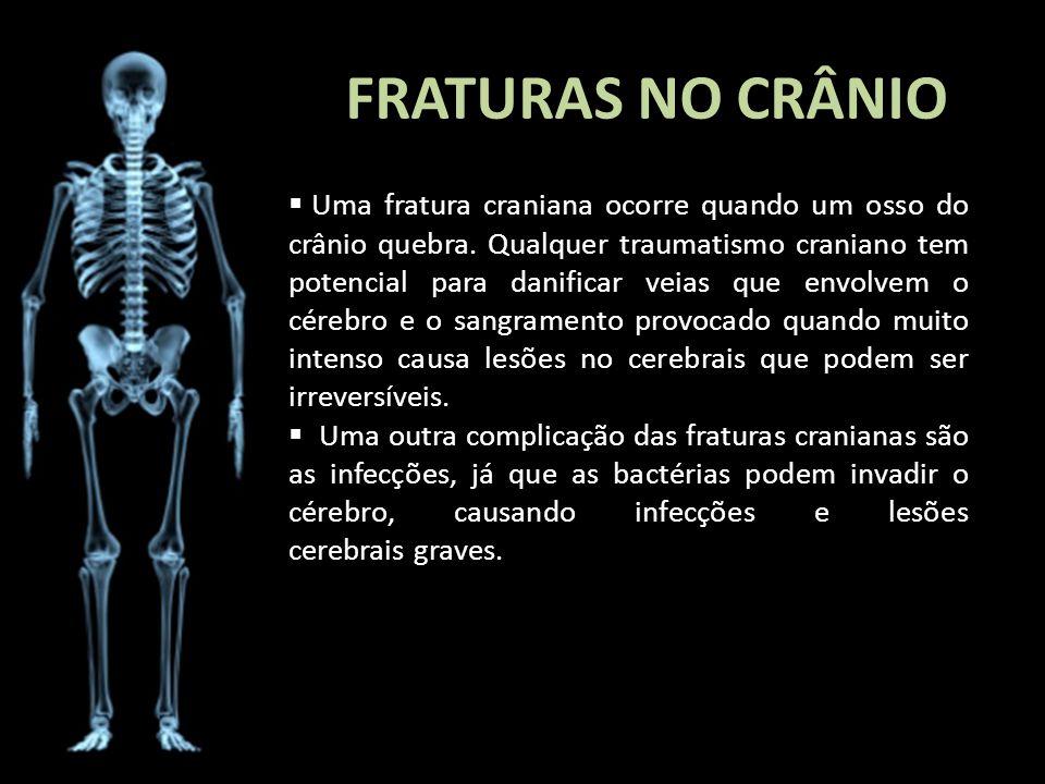 FRATURAS NO CRÂNIO Uma fratura craniana ocorre quando um osso do crânio quebra. Qualquer traumatismo craniano tem potencial para danificar veias que e