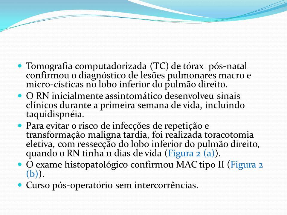 Tomografia computadorizada (TC) de tórax pós-natal confirmou o diagnóstico de lesões pulmonares macro e micro-císticas no lobo inferior do pulmão direito.
