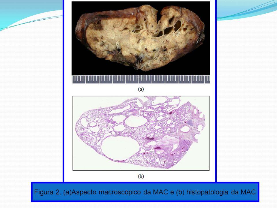 Figura 2. (a)Aspecto macroscópico da MAC e (b) histopatologia da MAC