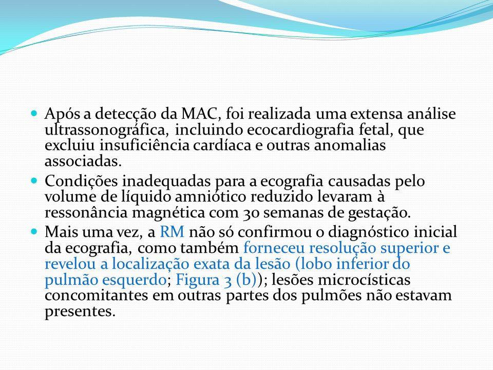 Após a detecção da MAC, foi realizada uma extensa análise ultrassonográfica, incluindo ecocardiografia fetal, que excluiu insuficiência cardíaca e outras anomalias associadas.
