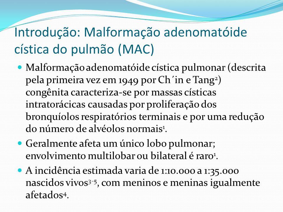 Introdução: Malformação adenomatóide cística do pulmão (MAC) Malformação adenomatóide cística pulmonar (descrita pela primeira vez em 1949 por Ch´in e Tang 2 ) congênita caracteriza-se por massas císticas intratorácicas causadas por proliferação dos bronquíolos respiratórios terminais e por uma redução do número de alvéolos normais 1.