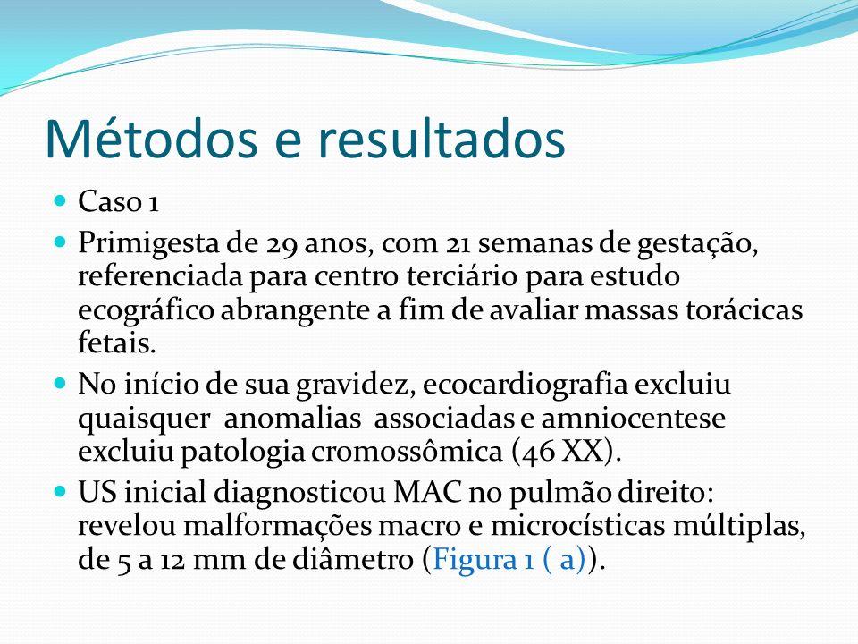 Métodos e resultados Caso 1 Primigesta de 29 anos, com 21 semanas de gestação, referenciada para centro terciário para estudo ecográfico abrangente a fim de avaliar massas torácicas fetais.