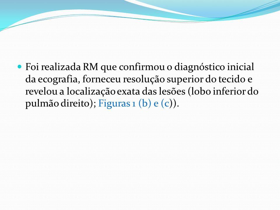 RM que confirmou o diagnóstico inicial da ecografia, forneceu resolução superior do tecido e revelou a localização exata das lesões (lobo inferior do pulmão direito)