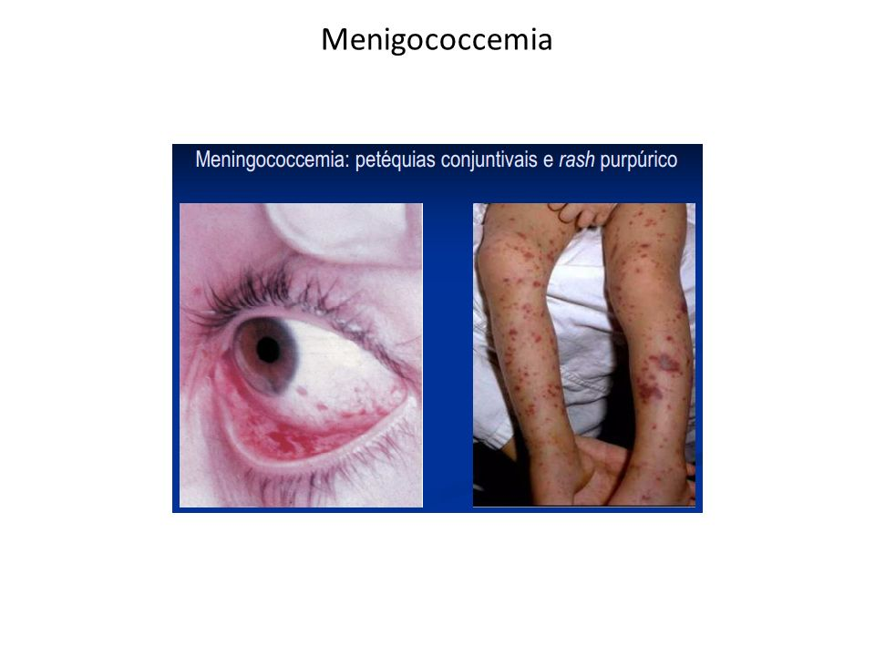 Menigococcemia