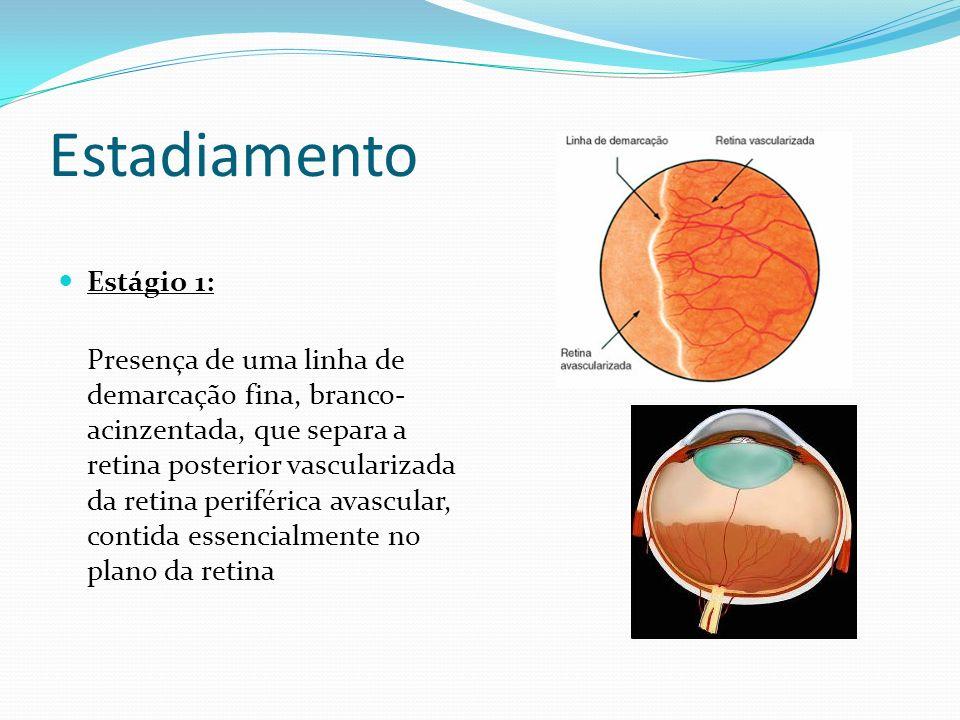 Estágio 2: A linha de demarcação observada anteriormente cresce em extensão e volume, torna-se rosada e surgem pequenos vasos no plano da retina, posteriormente à linha.