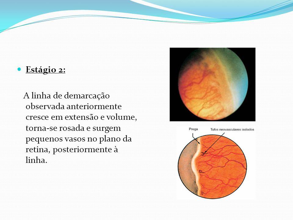 Estádio 3: Ocorre proliferação fibrovascular extra-retiniana.