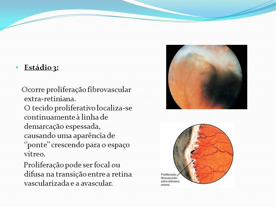 Estádio 4: Caracterizado pela presença de descolamento de retina, causado por efusão exsudativa, tração ou ambos.