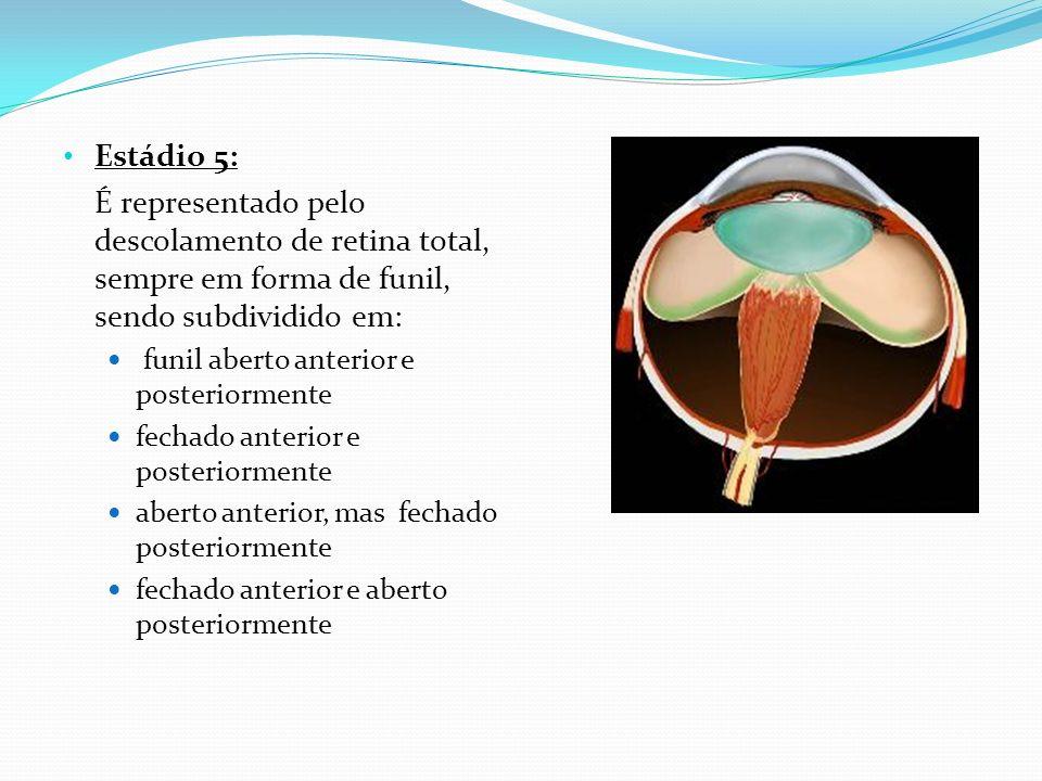 Doença limiar: Presença do estágio 3, localizado nas zonas I ou II com extensão de pelo menos 5 horas contínuas ou 8 horas intercaladas e com identificação da dilatação arteriolar e venosa conhecida como doença plus.