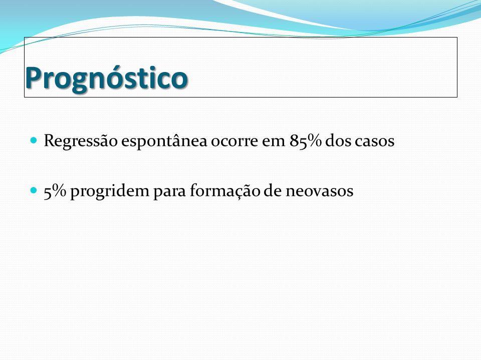 Referência Bibliográfica Retinopatia da prematuridade Autor(es): Rodolfo Alves Paulo de Souza, Nilc é ia Peclat Lessa/ Rosângela Cândido Marinho, Paulo R.
