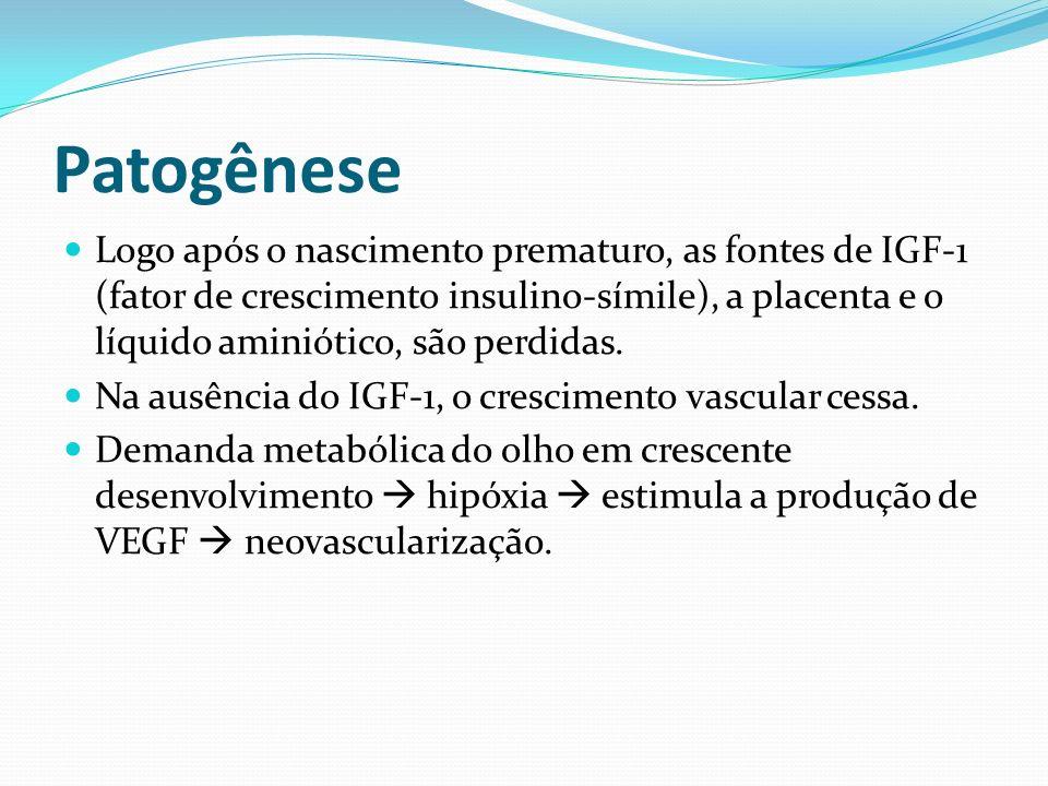 Patogênese O efeito do oxigênio sobre esta retina imatura induz à vasoconstricção que, se mantida, produz áreas de oclusões vasculares.