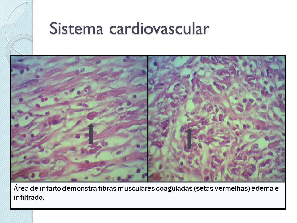 Sistema cardiovascular Área de infarto demonstra fibras musculares coaguladas (setas vermelhas) edema e infiltrado.