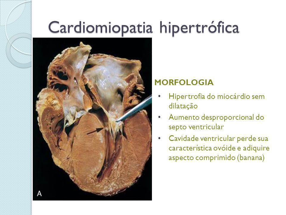 Cardiomiopatia hipertrófica MORFOLOGIA Hipertrofia do miocárdio sem dilatação Aumento desproporcional do septo ventricular Cavidade ventricular perde