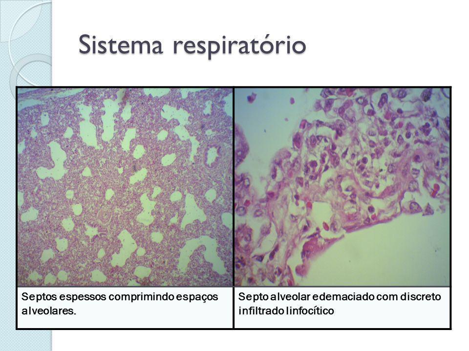 Sistema respiratório Septos espessos comprimindo espaços alveolares. Septo alveolar edemaciado com discreto infiltrado linfocítico