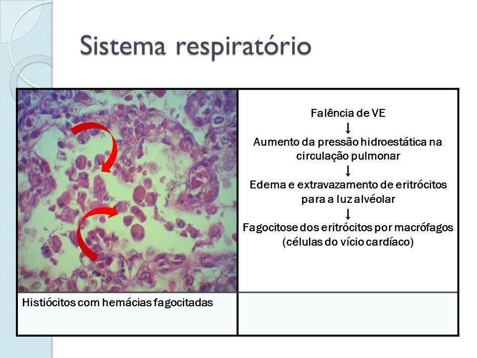 Sistema respiratório Falência de VE Aumento da pressão hidroestática na circulação pulmonar Edema e extravazamento de eritrócitos para a luz alvéolar
