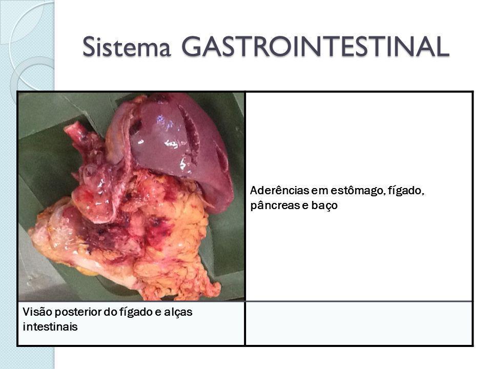Sistema GASTROINTESTINAL Aderências em estômago, fígado, pâncreas e baço Visão posterior do fígado e alças intestinais