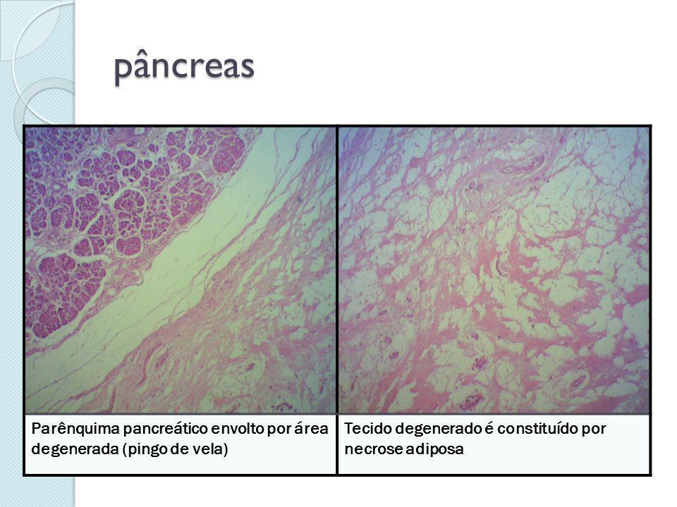 pâncreas Parênquima pancreático envolto por área degenerada (pingo de vela) Tecido degenerado é constituído por necrose adiposa
