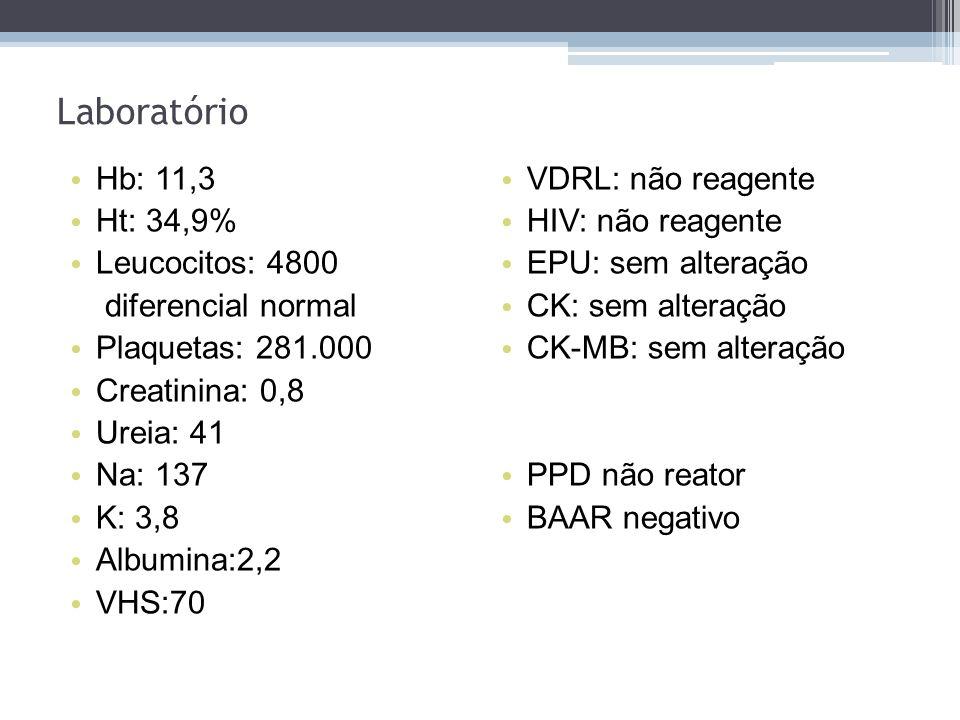 Hb: 11,3 Ht: 34,9% Leucocitos: 4800 diferencial normal Plaquetas: 281.000 Creatinina: 0,8 Ureia: 41 Na: 137 K: 3,8 Albumina:2,2 VHS:70 Laboratório VDR