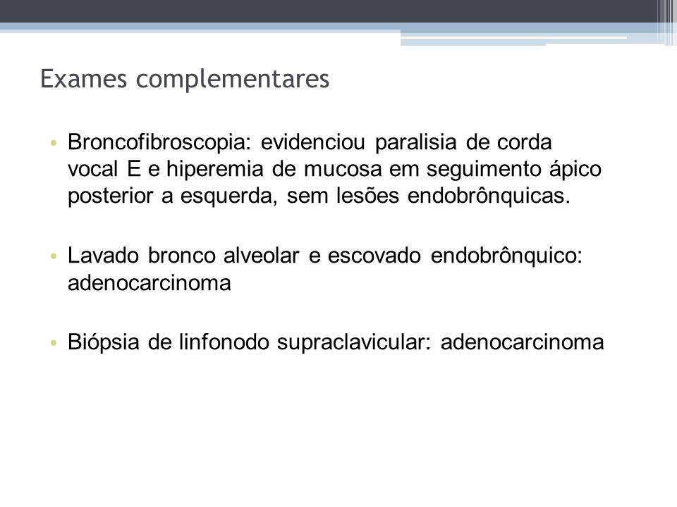 Broncofibroscopia: evidenciou paralisia de corda vocal E e hiperemia de mucosa em seguimento ápico posterior a esquerda, sem lesões endobrônquicas. La