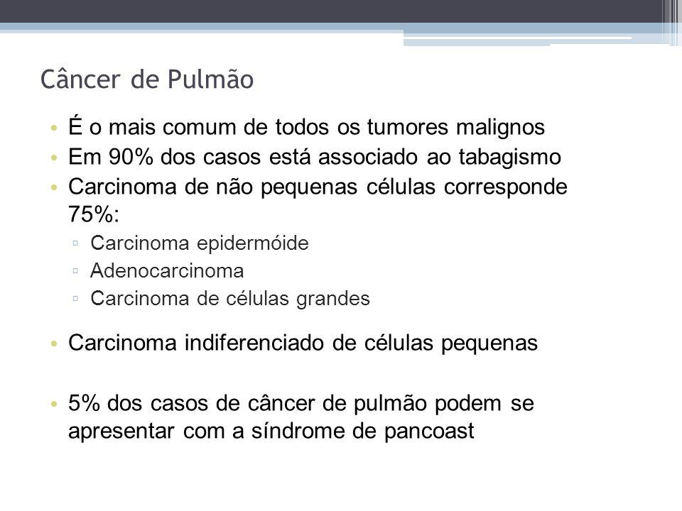 É o mais comum de todos os tumores malignos Em 90% dos casos está associado ao tabagismo Carcinoma de não pequenas células corresponde 75%: Carcinoma