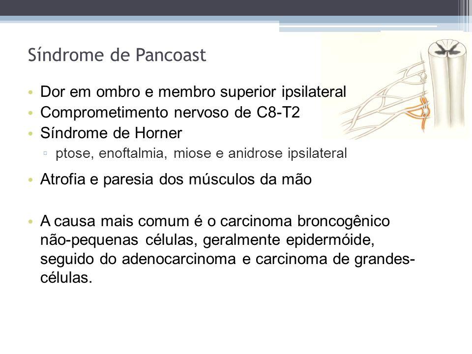 Dor em ombro e membro superior ipsilateral Comprometimento nervoso de C8-T2 Síndrome de Horner ptose, enoftalmia, miose e anidrose ipsilateral Atrofia