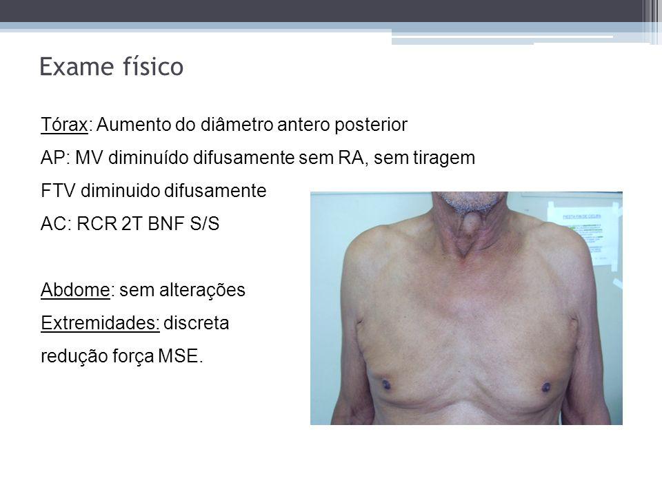 Dor em ombro e membro superior ipsilateral Comprometimento nervoso de C8-T2 Síndrome de Horner ptose, enoftalmia, miose e anidrose ipsilateral Atrofia e paresia dos músculos da mão A causa mais comum é o carcinoma broncogênico não-pequenas células, geralmente epidermóide, seguido do adenocarcinoma e carcinoma de grandes- células.