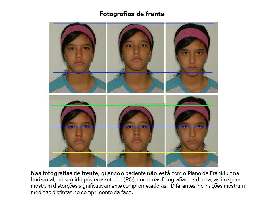 Nas fotografias de frente, quando o paciente não está com o Plano de Frankfurt na horizontal, no sentido póstero-anterior (PO), como nas fotografias d