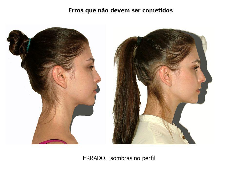 Erros que e acertos Os cabelos devem ficar atrás das orelhas, mostrando o tragus e também o pescoço do paciente