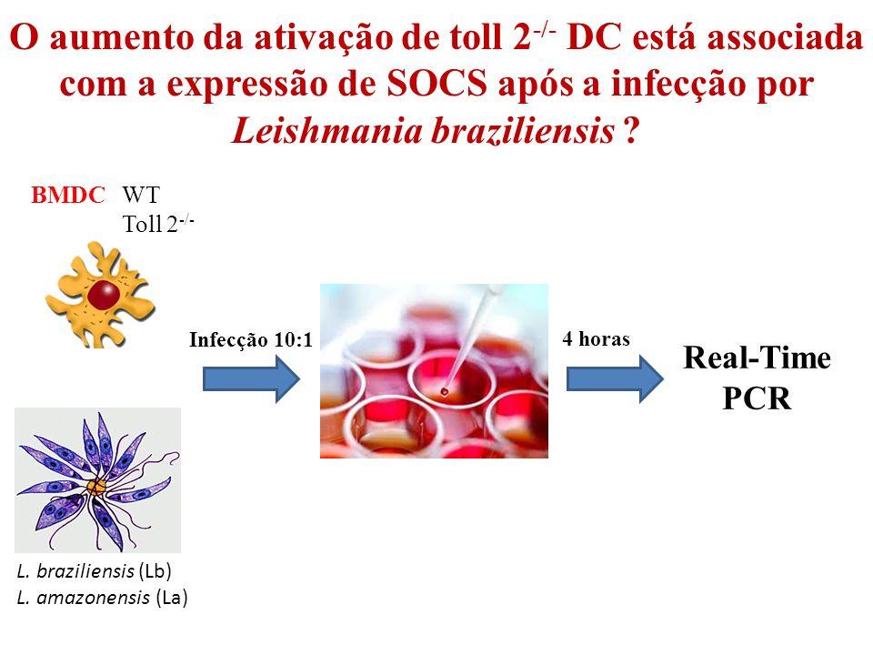 BMDC WT Toll 2 -/- Infecção 10:1 Real-Time PCR 4 horas L.